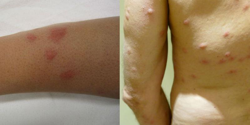 bed bug scar treatment