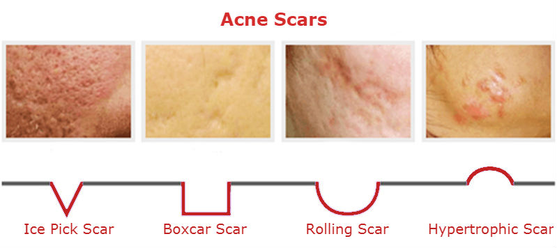 Types of acne marks