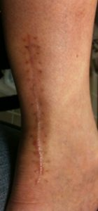 5 months after tendon repair; no scar treatment to date keloid is beginning to from