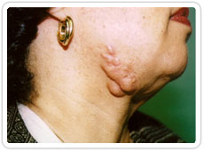 Keloid scar prior to surgical removal