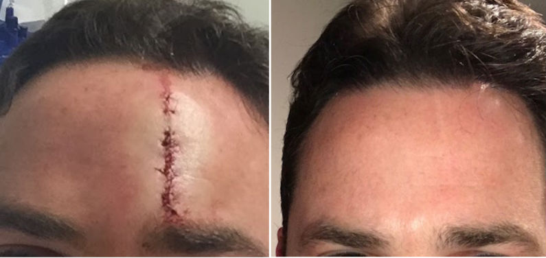 Scarless MD severe forehead scar