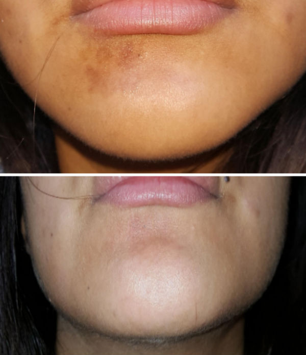 Mederma scar on the chin