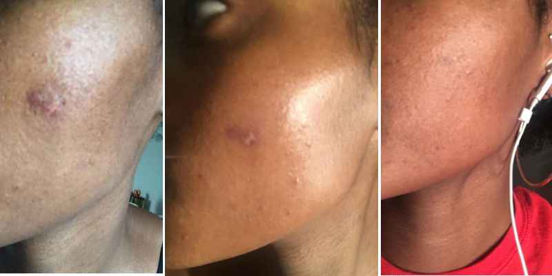 Mederma scar removal cream on a burn