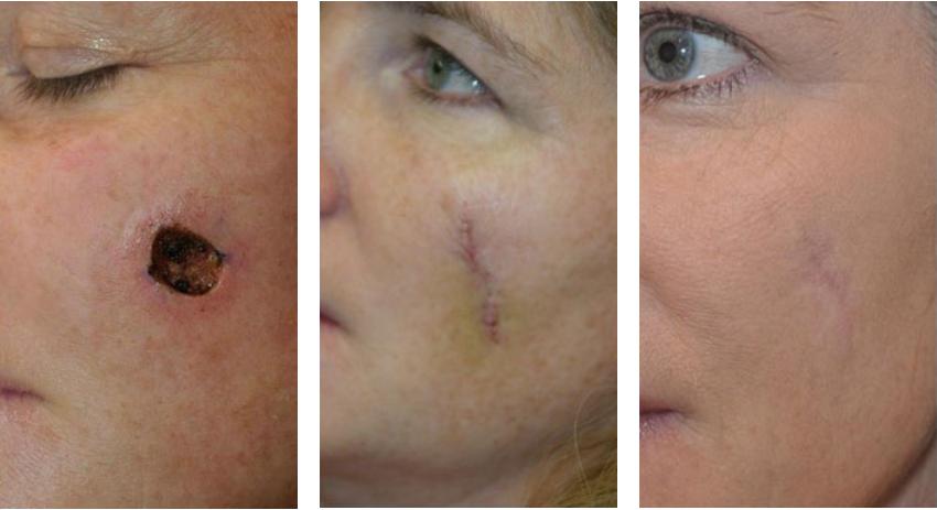 NewGel facial surgery