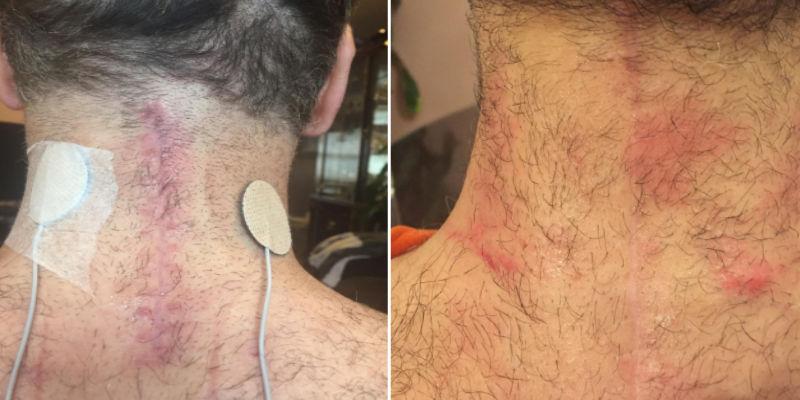 NewGel on a surgery scar