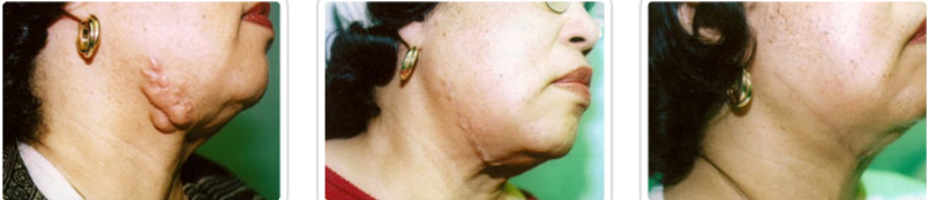 NewGel for keloid scar therapy