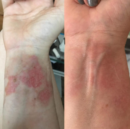 PuriDerma on a burn scar