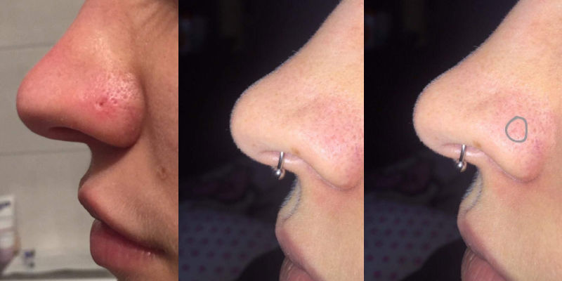 PuriDerma nose scar application