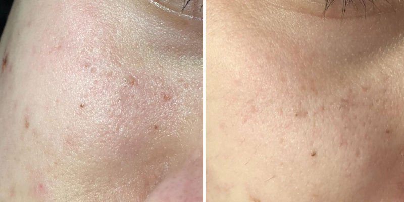 PuriDerma for pore reduction