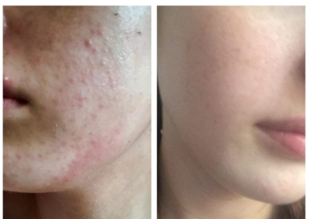 Puriderma effect on acne marks