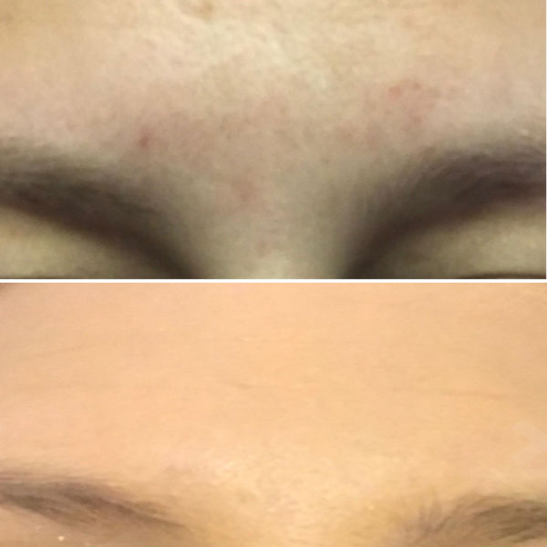 Aroamas acne scars improvement