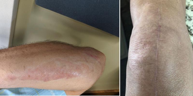 Aroamas road rash treatment