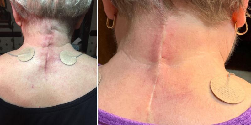 Aroamas gel Surgery Improvement