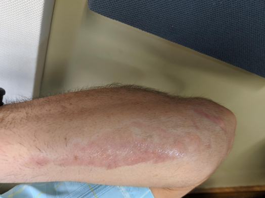 Road rash scar