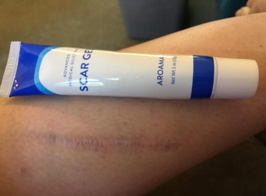 treating leg scarr with Aroamas