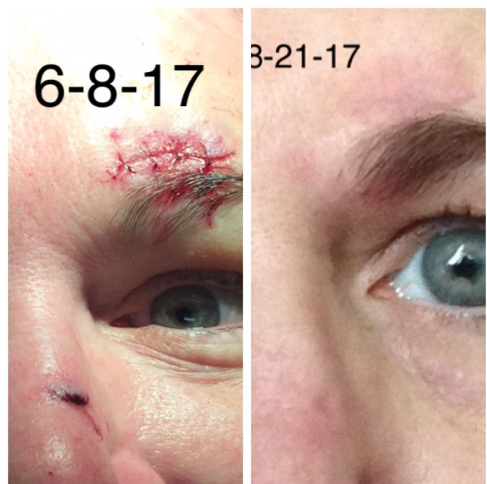BioCorneum scar improvement