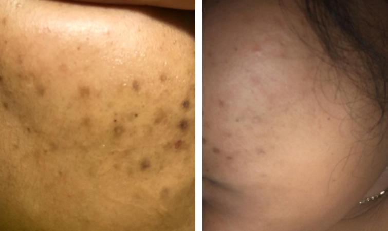 Derma-E dark marks