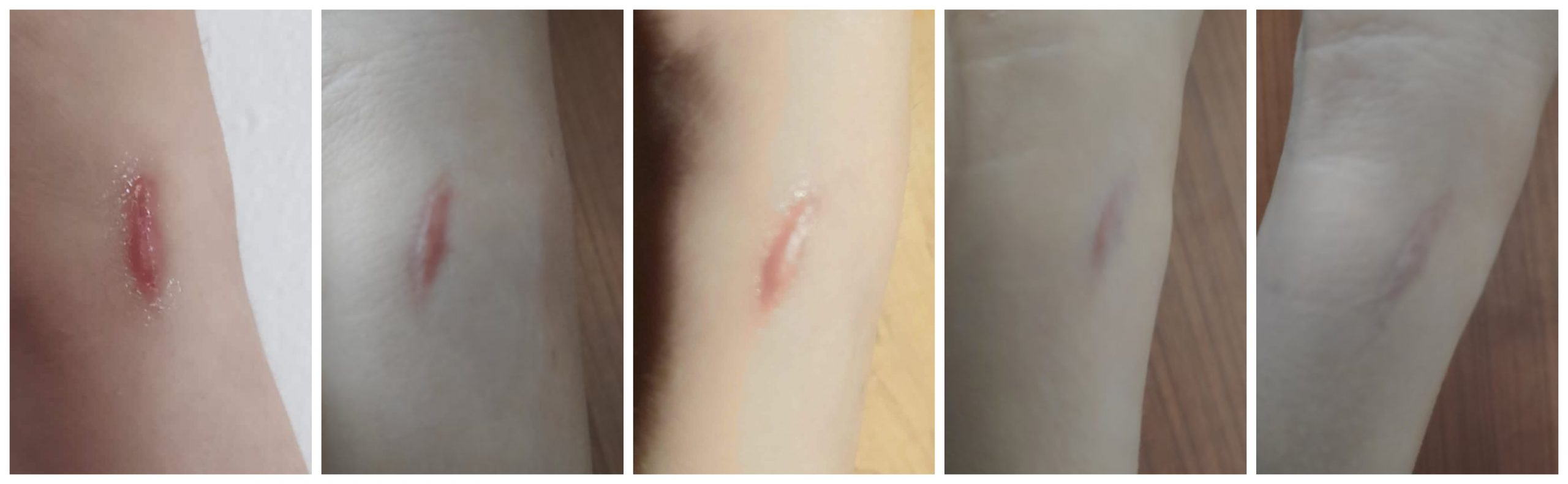 The Best Scar Removal Creams Proven To Work And Clinically Tested